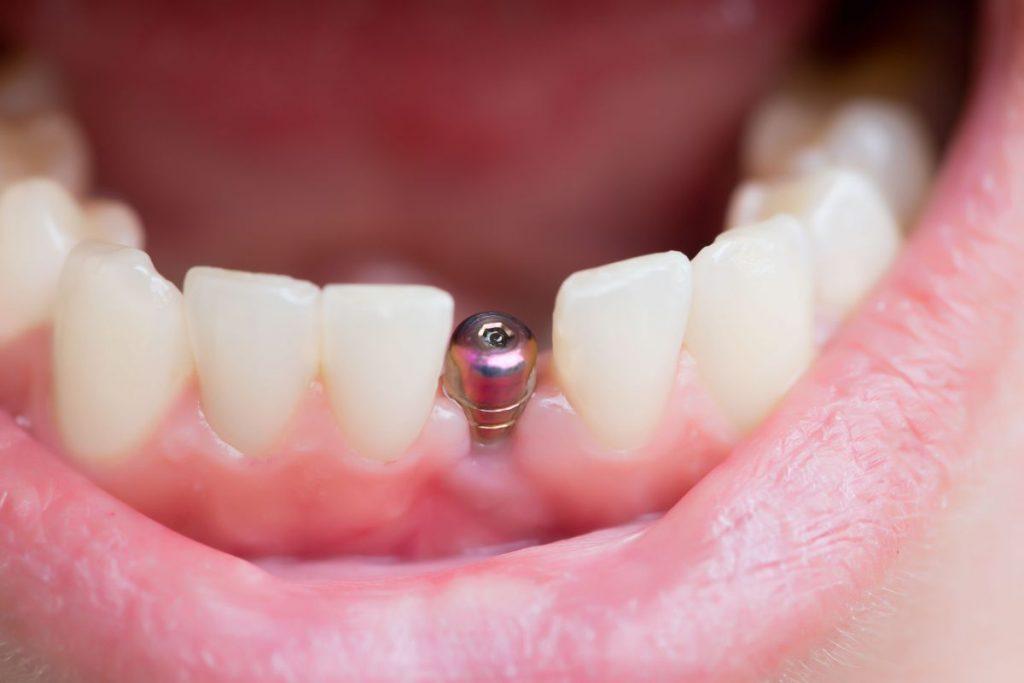 Leczenie implantologiczne zębów
