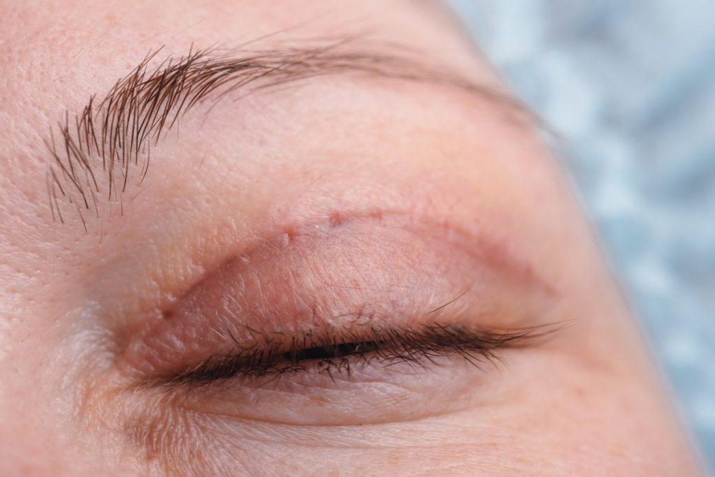 Oko po korekcie opadających powiek wykonanej w Gabinecie Medycyny Estetycznej w Gdyni