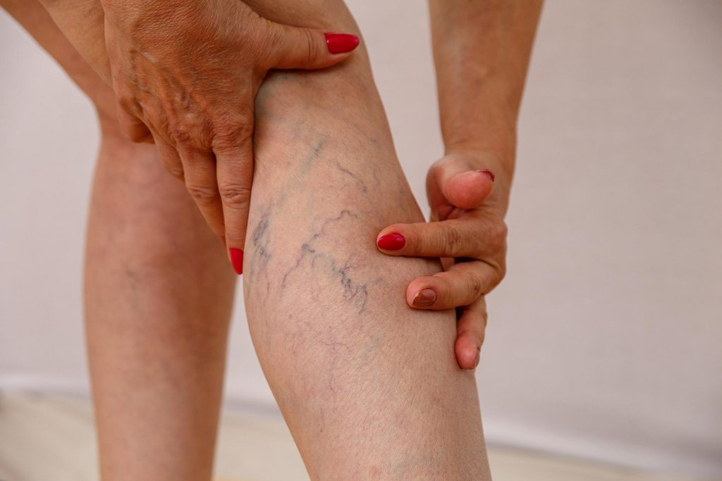 skleroterapia